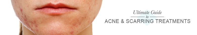 Acne & Scarring Treatments