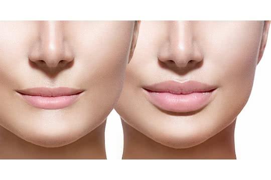 How Do I Make Thin Lips Look Fuller?