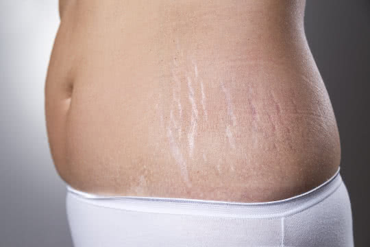 How Can I Minimise The Appearance Of Stretch Marks