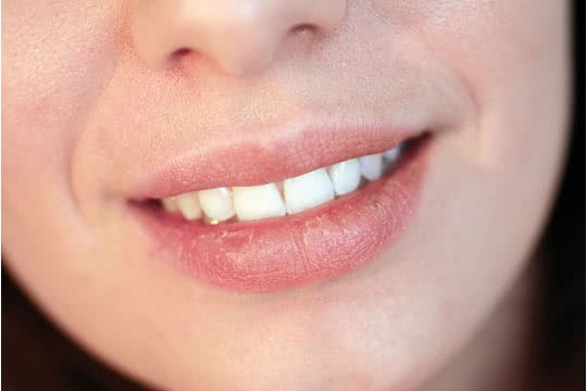 How Do I Keep My Lipstick From Drying My Lips?