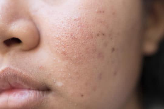 How Do I Reduce the Redness of Acne Scars?