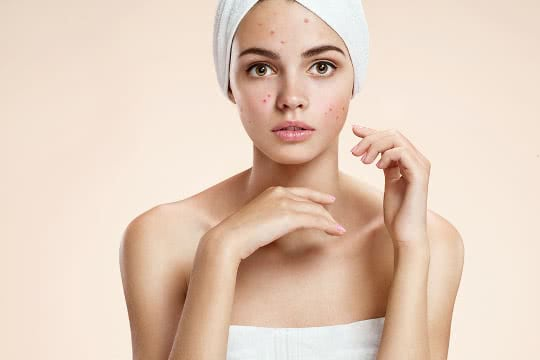 What Treatment Should I Use for Chicken Pox Scars?